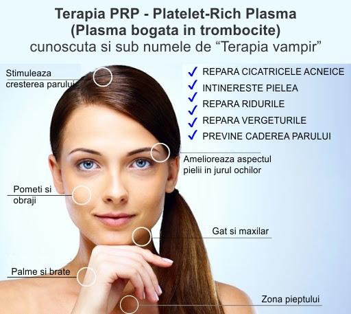 Terapia PRP Platelet Rich Plasma sau Plasma bogata in trombocite